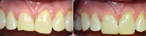 chipped-teeth-banner-img