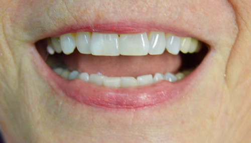 gaps-or-spaces-in-your-smile-after-img