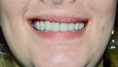misshapen-teeth-after-image