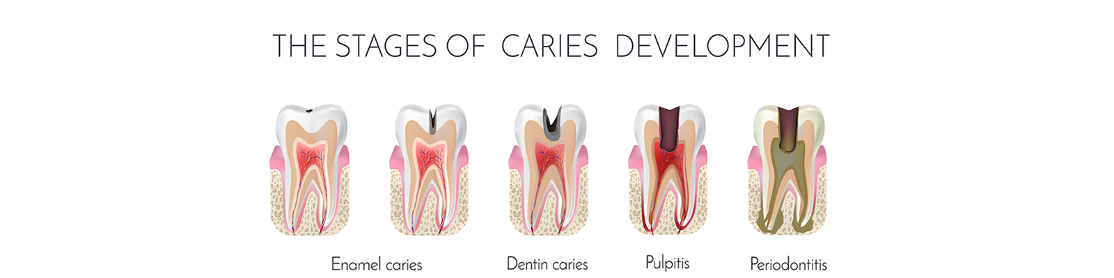 root-canal-banner-img